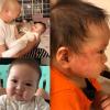 BOB細囝濕疹爆發 嬰兒濕疹點處理?(附天然療法)